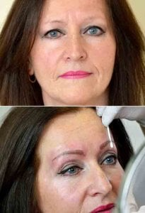 A before and after photograph of a microblading client