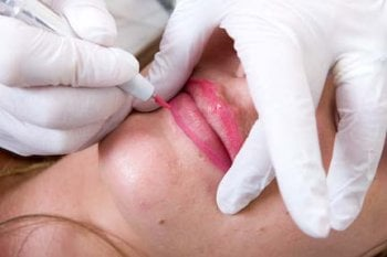 A photograph of a female client having microblading lips treatment