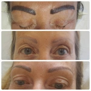 Eyebrow tattoo removal and microblading removal | Redeem Clinic