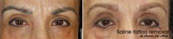 Microblading removal - Saline V's Laser eyebrow tattoo removal