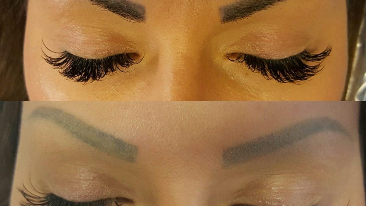 semi permanent makeup laser removal