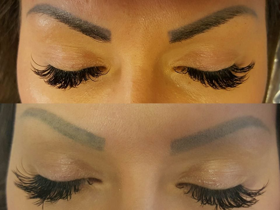 semi permanent makeup laser removal