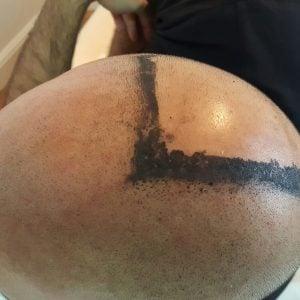 hair folical replacation