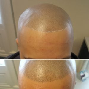 scalp tattoo removal