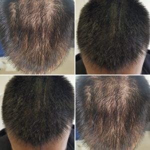 hair densification men