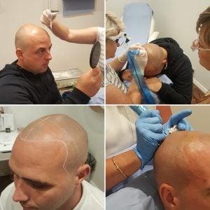hair transplant alternative