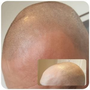 scalp tattoo before and after