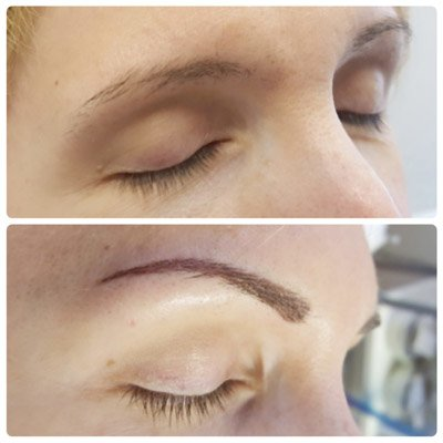 A photo showing eyebrow blading