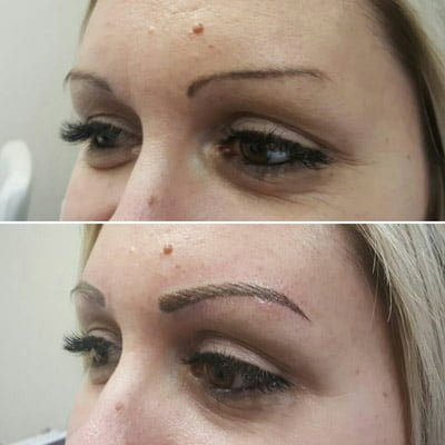A photo of microblading before and after