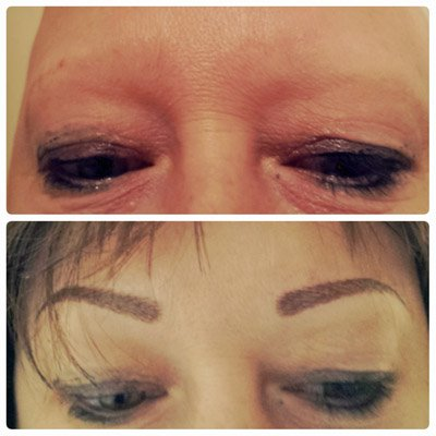 How can microblading help alopecia