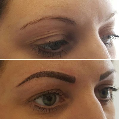 A client who has undergone microblading eyebrows
