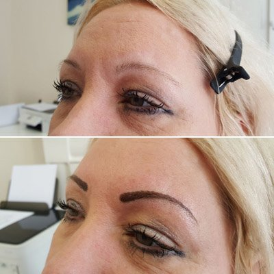 A client having undergone new eyebrow trend
