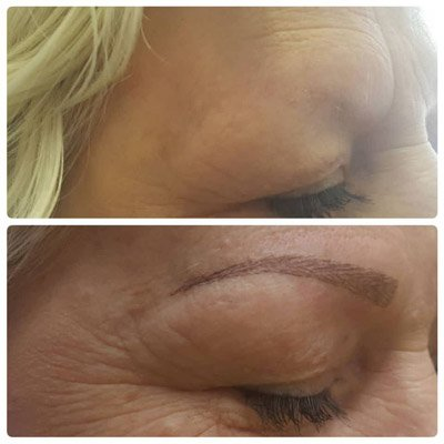 A cient having undergone permanent makeup Hull